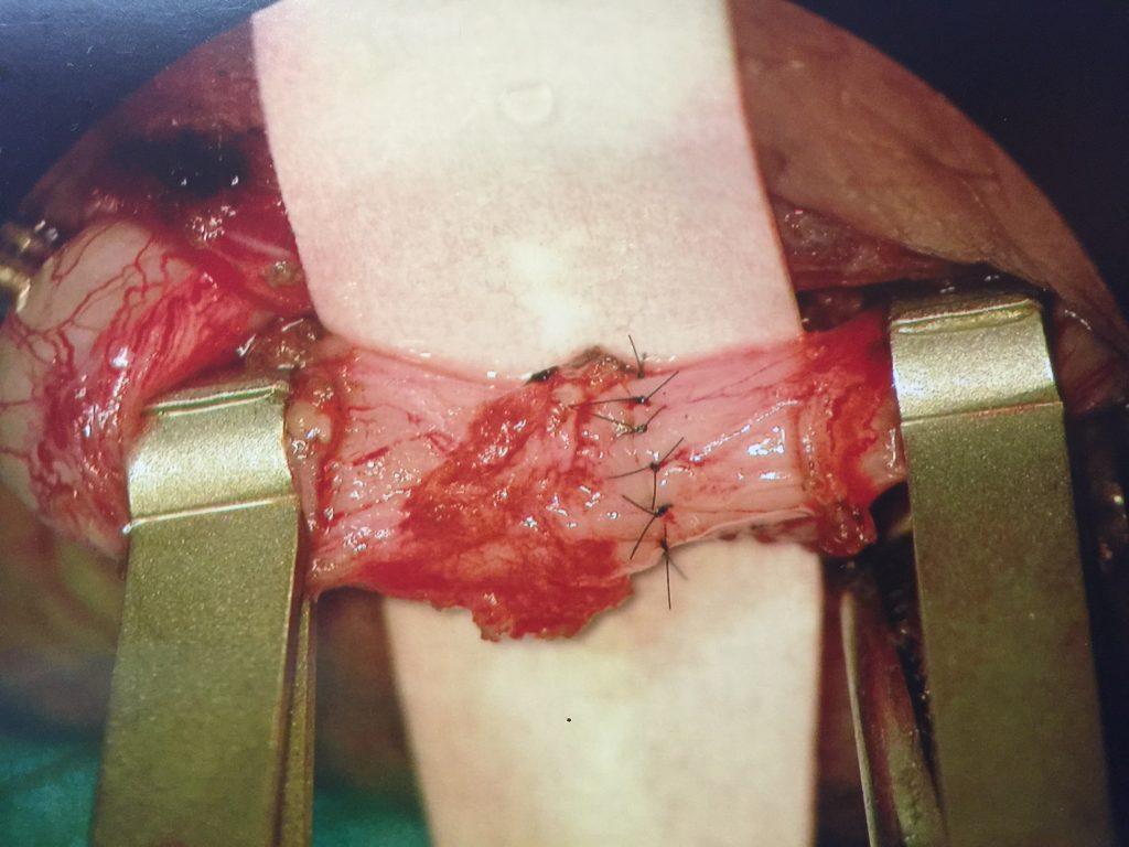 anastomosis completada en vasovasostomia