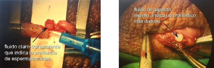 fluido transparente y fluido de aspecto lechoso en una vasovasostomía
