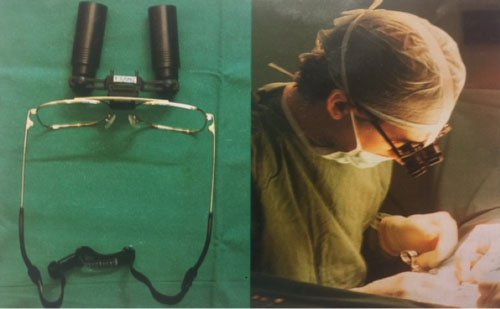 gafas de aumento para microcirugía son insuficientes para la vasovasostomía