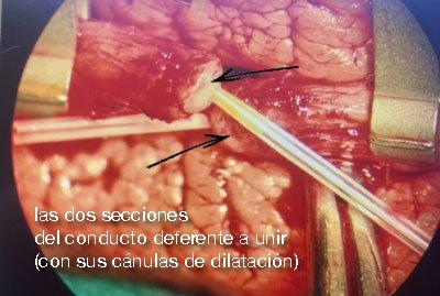 los dos conductos a unir con la vasovasostomía-v2