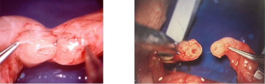 suturas milimétricas en vasovasostomía realizadas mediante microscopio