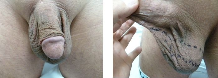 vasovaso-escroto-antes