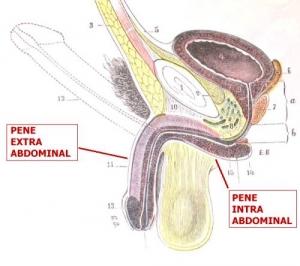 vasovaso-intra-extra