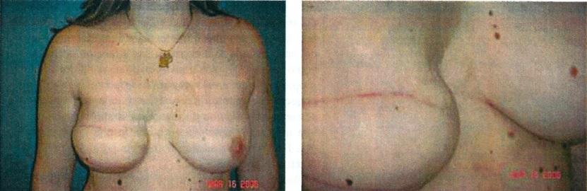 vasovaso-pechos-antes