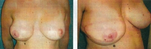 vasovaso-pechos-despues