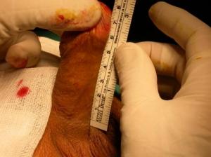 vasovaso-preoperatorio-1