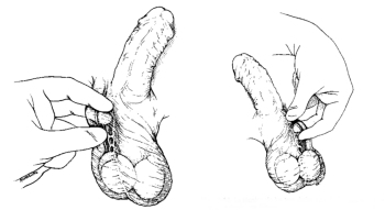 Esquema de vasectomía con Técnica Quirúrgica Habitual