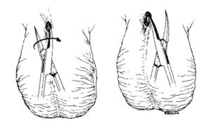 Incisión para vasectomía