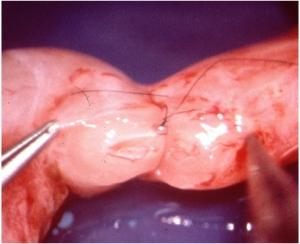 Sutura en vasovasostomía
