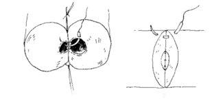 Sutura en dos planos en vasovasostomía