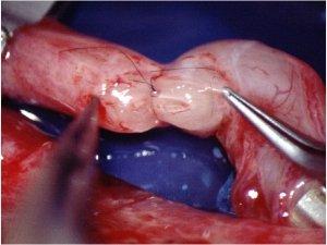Fotografía de la sutura en dos planos en vasovasostomía
