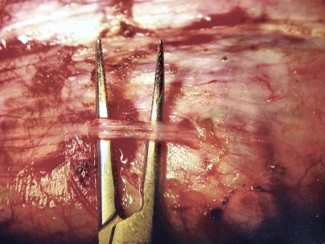 neurotomía selectiva peneana| nervios dorsales del pene , visión microscopio