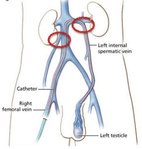 Varicocele, testículos derecho e izquierdo 1