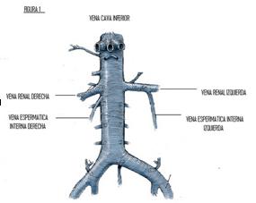 Varicocele, testículos derecho e izquierdo 2