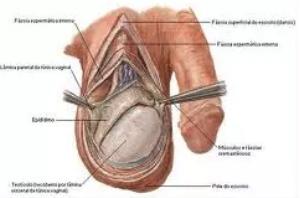 varicocele, para ser fértil