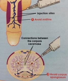 Como eliminar sensibilidad del glande