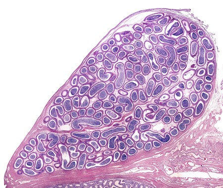 epididimovasostomia